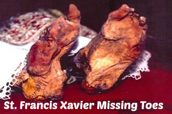 Francis-Xavier-Missing-Toes